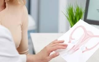 Как лечить опущение и выпадение матки и шейки