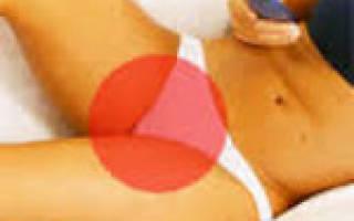 Вульвовагинит у женщин и девочек: лечение и симптомы