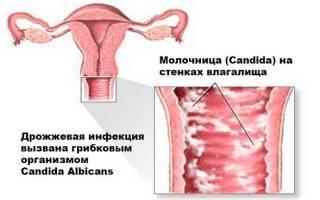 Левомеколь при молочнице у женщин