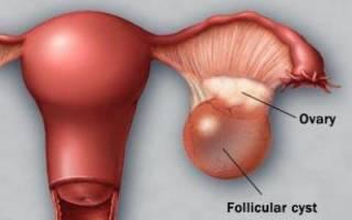 Лопнула киста яичника — последствия и лечение