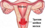 Почему кровит шейка матки при осмотре