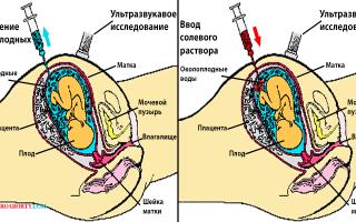 Солевой аборт: показания, подготовка, как проводится