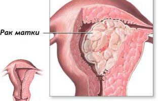 От чего бывает рак матки