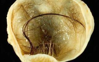 Причины возникновения дермоидной кисты яичника и методы ее лечения