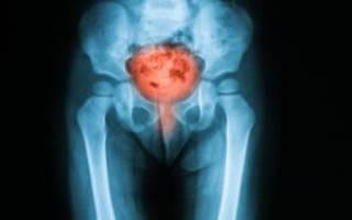 Постлучевой цистит: причины появления, диагностика, методы лечения
