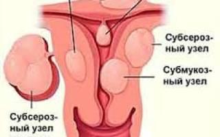 Как лечить доброкачественную опухоль матки