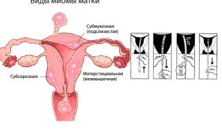 Аспират эндометрия