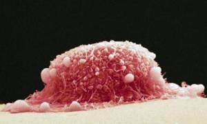 Во влагалище шишка: причины, лечение, прогноз