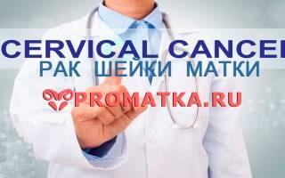 Первые признаки и симптомы рака шейки матки