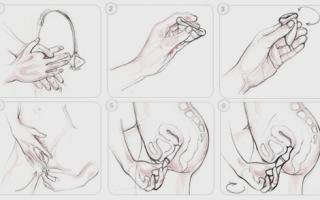 Менструальная силиконовая чаша: как использовать и правильно вставлять