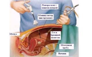 Особенности и показания к проведению экстирпации матки лапароскопическим методом