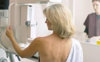 Аденома молочной железы: причины, симптомы и лечение
