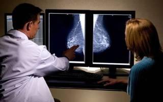 Рак грудины — симптомы, первые признаки рака молочной железы