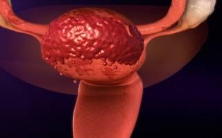 Боли при эндометриозе матки