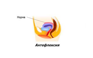 Антефлексия матки
