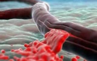 Профузное маточное кровотечение