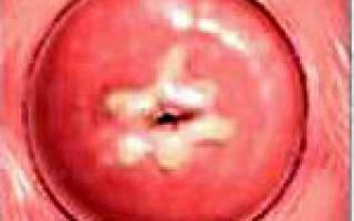 Дисплазия шейки матки — степени, причины, методы лечения