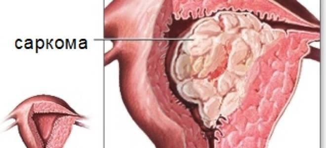 Что такое саркома матки, почему она возникает, где локализуется?