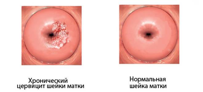Что называют хроническим цервицитом шейки матки?