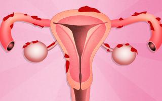 Способы удаления эндометриоза
