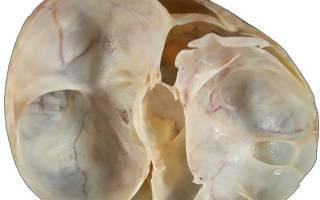 Муцинозная (псевдомуцинозная) киста яичника