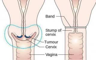 Что означает мягкая шейка матки при беременности и перед месячными?