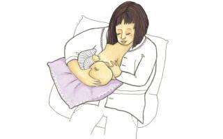 Лактостаз у кормящих матерей: симптомы и лечение