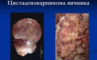 Муцинозная и серозная папиллярная цистаденокарцинома яичника: описание заболевания, возможные пути лечения и прогноз