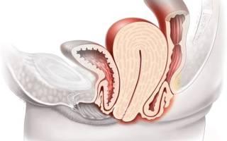 Признаки опущения матки: причины и лечение патологии