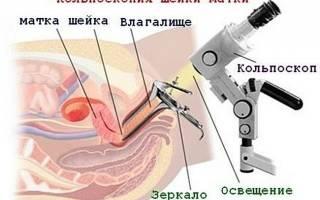 Осмотр шейки матки под микроскопом