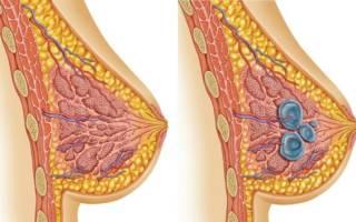 Диффузная мастопатия: виды и лечение