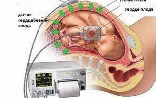 Сердцебиение плода при беременности: частота, когда можно услышать