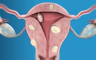 Симптомы и признаки рака эндометрия матки