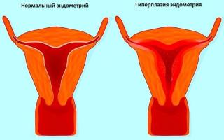 Норколут при гиперплазии