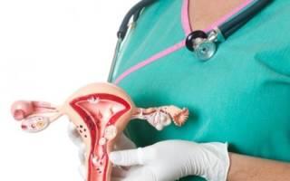 Первая стадия рака шейки матки