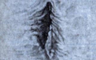 Крауроз вульвы: лечение, причины и симптомы