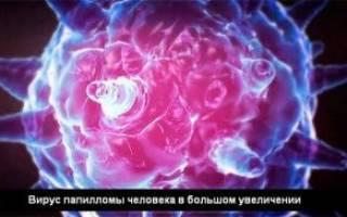 Вирус папилломы человека на шейке матки, папилломавирус