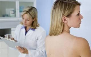 Генитальный герпес на половых губах, чем лечить и фото заболевания