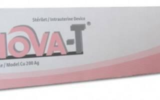Срок использования, достоинства и недостатки внутриматочной спирали Nova-T (Нова-Т)