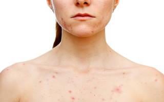 Розеолезная сыпь характерна: при детской розеоле, тифе и сифилисе