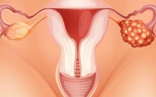 Трехкамерная и двухкамерная киста яичника: в чем отличия и как лечить?
