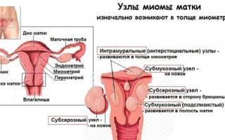 Гистероскопия и биопсия при миоме матки