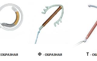 Спираль внутриматочная Вектор: действие и процедура установки