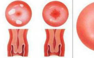 Причины возникновения эрозии шейки матки у нерожавших