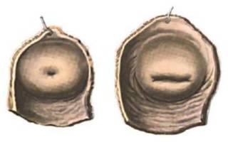 Гистология шейки матки