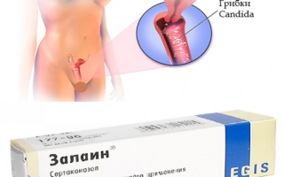 Крем Залаин при молочнице: инструкция по применению