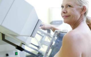 Фиброзная ткань, лечение фиброза молочной железы