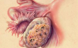 Аденокарцинома яичника: выживаемость на разных стадиях